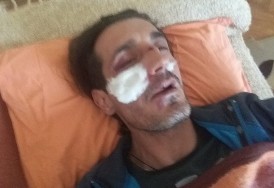 Son of the SDSM appointed Mayor of Radovis beat up a disabled opposition activist