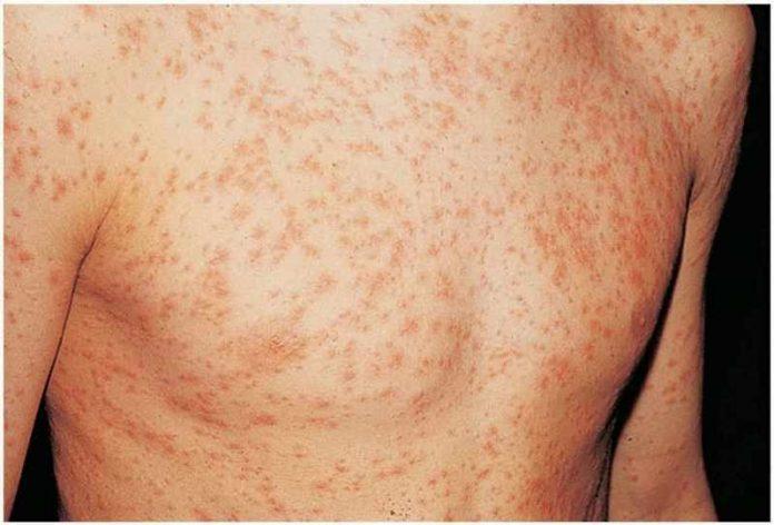 Measles epidemic declared in Macedonia
