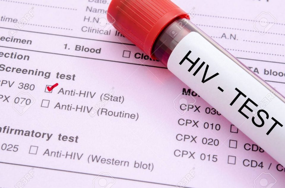 New 57 cases of HIV/AIDS diagnosed in 2019, all but two of the patients are men