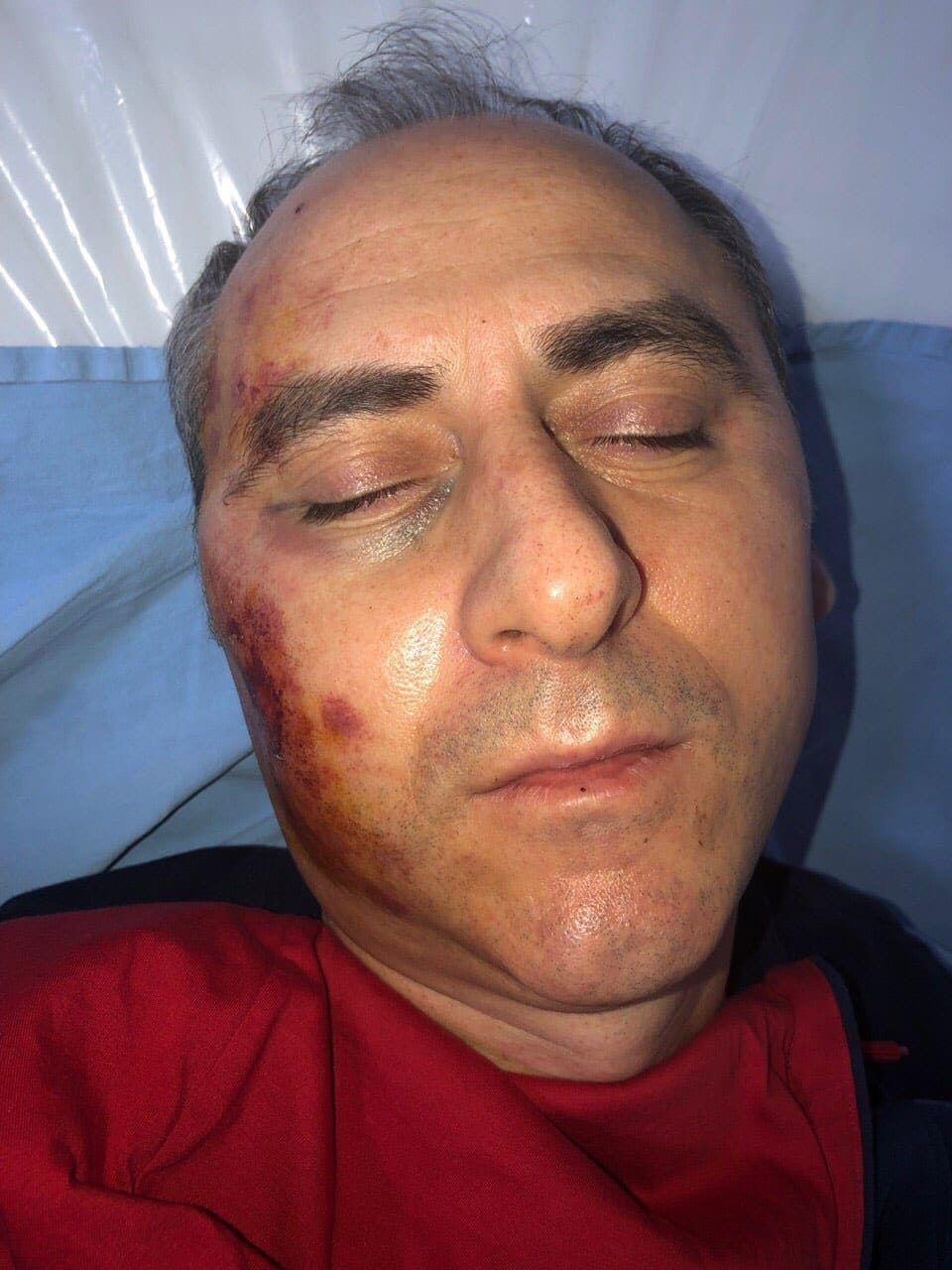 Persecuted former Mayor Toni Trajkovski sustained head injuries after being attacked by a group of thugs